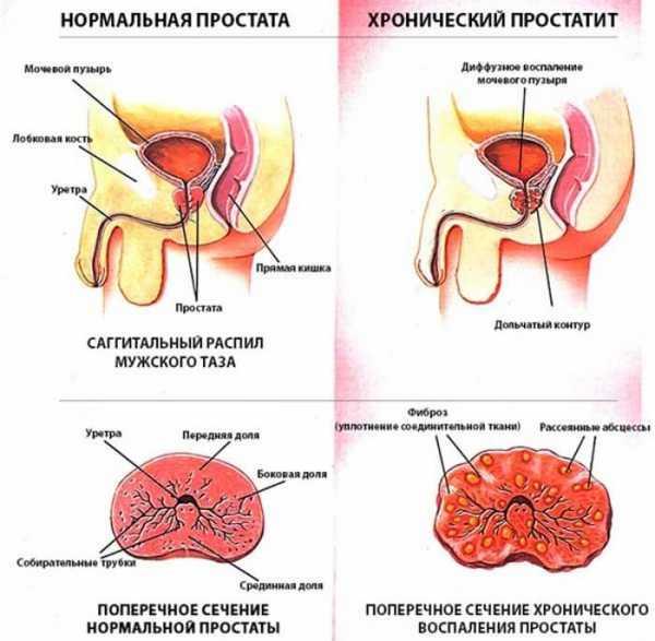 Какие стадии простатита является ли простатит причиной невынашивания